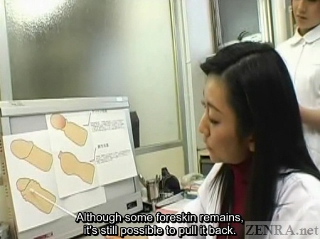 Japanese doctor explains phimosis with a diagram