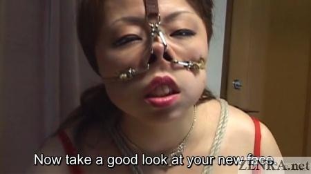 extreme nose hooks facial reconstruction